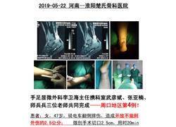 20190522淮阳楚氏骨科医院