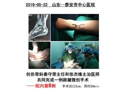 20190522泰安市中心医院